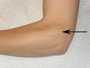 Lateral Epicondyle of Left Elbow